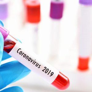 24 нови случая на коронавирус в страната за денонощие