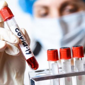 Коронавирус: 1850 новозаразени и 3375 излекувани, в област Плевен – 33 положителни проби