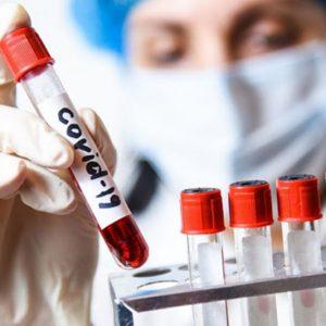 2091 са новите случаи на коронавирус, в област Плевен – 37!